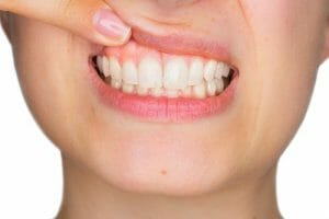 woman pulling up top lip to expose teeth