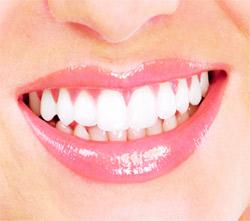 030 - dental sensitivty 2