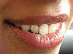 Dental Implants Sidney Ohio