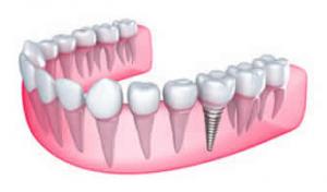 Dental Implants Sidney