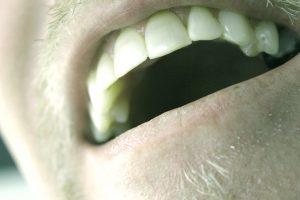 Oral cancer screening Sidney, OH
