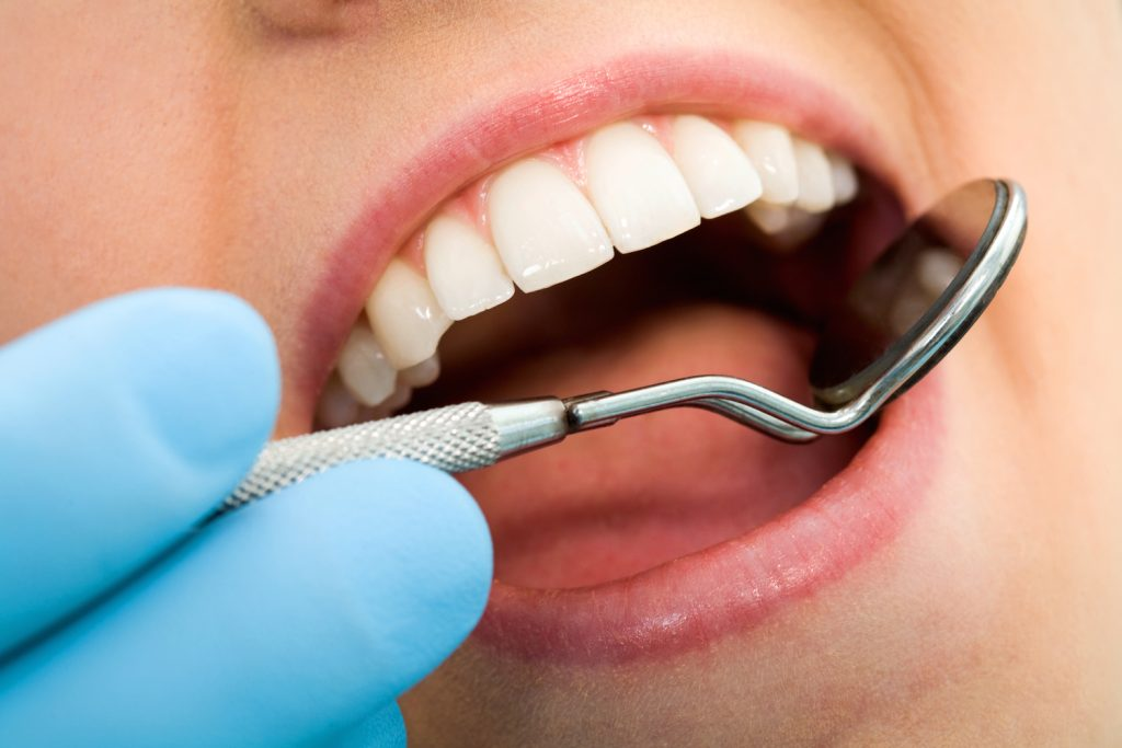 how plaque harms our teeth Sidney OH dentist